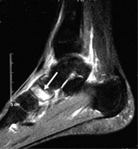 https://upload.orthobullets.com/topic/7033/images/mri-foot-sag- navicular stress fx - internet_moved.jpg